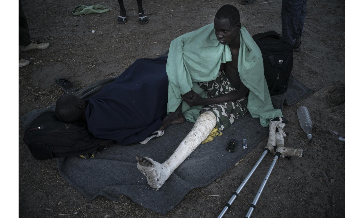 A young injured rebel. Yidit, South Sudan, May 3rd 2017.